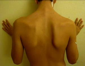Behold: scapular dysfunction